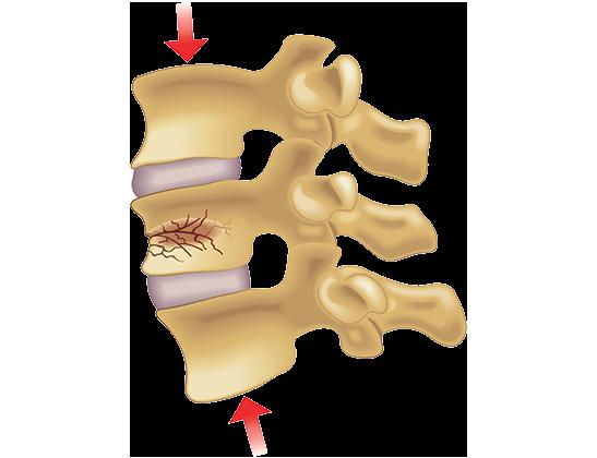 vertibral compression fracture